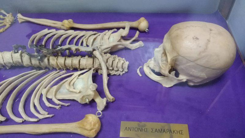 ΕΔΡΑ ΑΝΑΤΟΜΙΑΣ: Ο σκελετός του συγγραφέα Αντώνη Σαμαράκη.